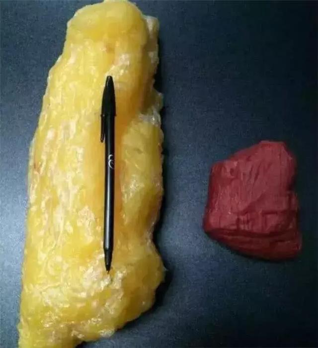 350斤产妇剖腹产,医生在肉里摸了1个小时,剖出孩子让人痛惜
