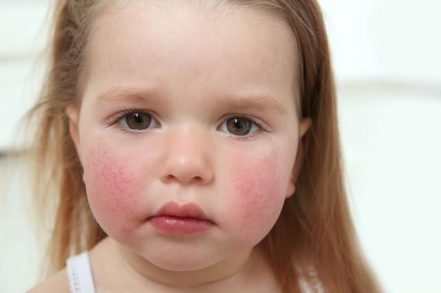 *猜你喜欢*                            常见的儿童皮肤过敏有接触